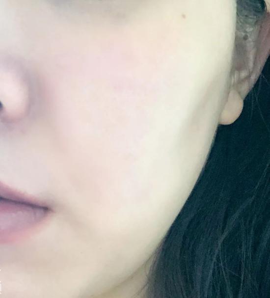 明星同款cellreturn光子嫩肤美容仪测评,她究竟好在哪里?